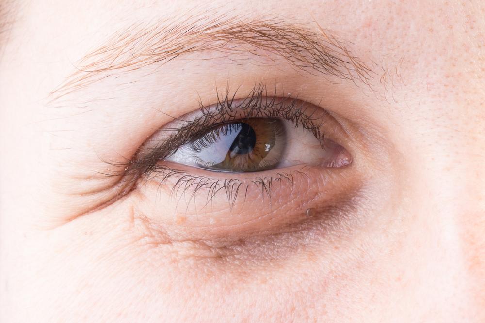 وصفة مذهلة للتخلص من التجاعيد حول العين