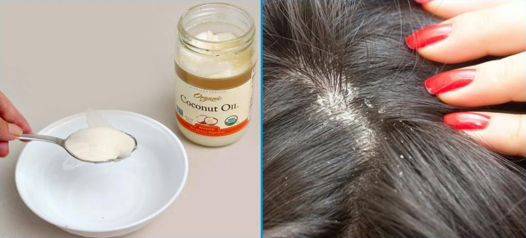 زيت جوز الهند لعلاج قشرة الشعر.. وصفة مجربة