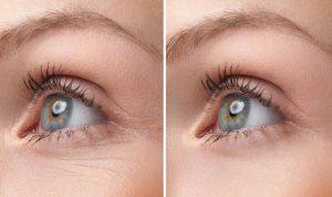 قناع الخميرة للتخلص من تجاعيد العين في أسرع وقت