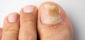 وصفات طبيعية لعلاج فطريات أظافر القدم