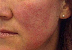 """تعرف على مرض بكتيريا الوجه المميت الذي أصاب """"ريهام سعيد"""""""