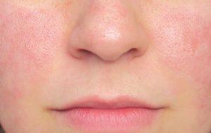 ماسك طبيعي لشد البشرة وتقليل حجم المسام الواسعة