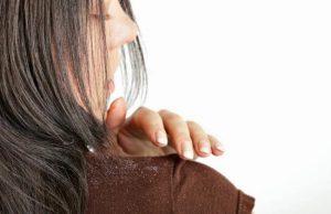 وصفة زيت شجرة الشاي وجل الألوفيرا للتخلص من قشرة الشعر نهائيًا
