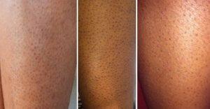 وصفة طبيعية تخلصك من المسام السوداء الموجودة في الساق