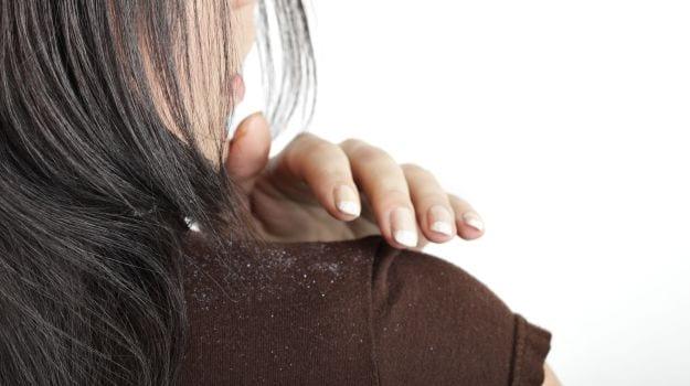 وصفة صفار البيض والشاي الأخضر للتخلص من قشرة الشعر نهائيًا