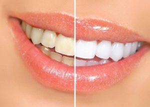 3 وصفات طبيعية لتبييض الأسنان أفضل من المعجون