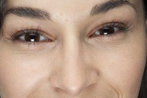 أسباب وطرق علاج تجاعيد العين