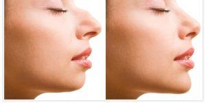 وصفة الزنجبيل لتصغير الأنف دون تدخل جراحي