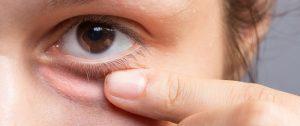5 طرق لعلاج انتفاخات العيون