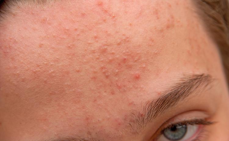 وصفة مجربة لعلاج الحبوب تحت الجلد