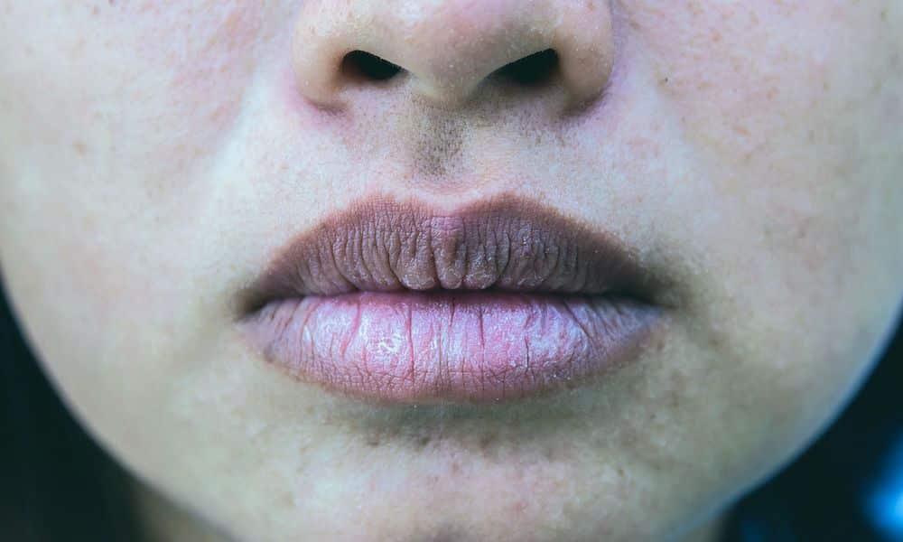 أفضل وصفة للتخلص من اسمرار حول الفم