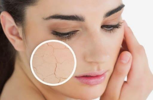 مقشر طبيعي للبشرة الجافة للترطيب والتخلص من الجلد الميت